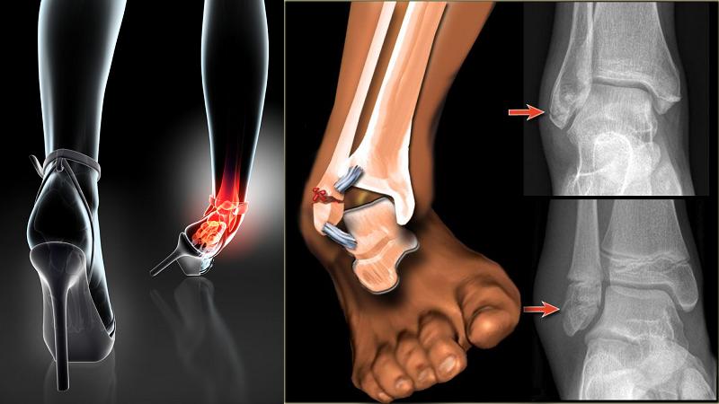 При резкой инверсии стопы возможен незавершенная лодыжечная травма Мальгеня