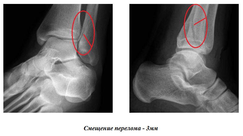 DR-снимки слома наружной лодыжки л. м. берцовой кости