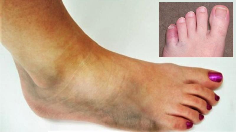 Сильная боль, отек и синяки – типичная картина после перелома голеностопа и стопы