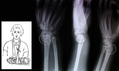 Разновидность транспортной иммобилизации и рентген перелома луча в III проекциях