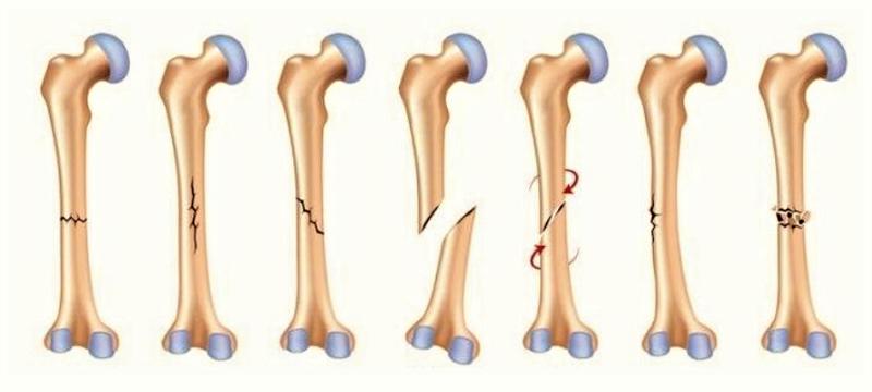 Перелом в средней трети плечевой кости: возможные виды линии излома
