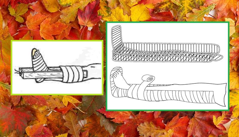 Фиксация голеностопа подручными средствами и задней шиной