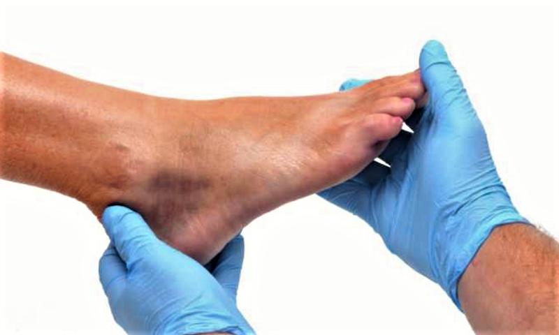 Симптомы и признаки вывихов и закрытых переломов в области стопы одинаковы