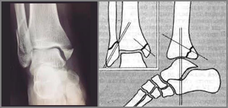 Трехлодыжечный перелом с вывихом стопы: рентгеновский снимок и схема остеосинтеза