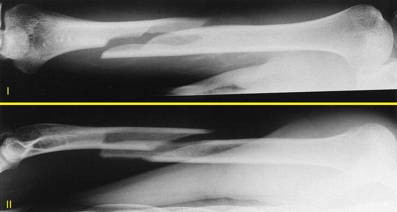Спиралевидный перелом диафиза плеча