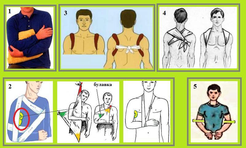Возможные виды фиксации при подозрении на повреждение ключичной кости