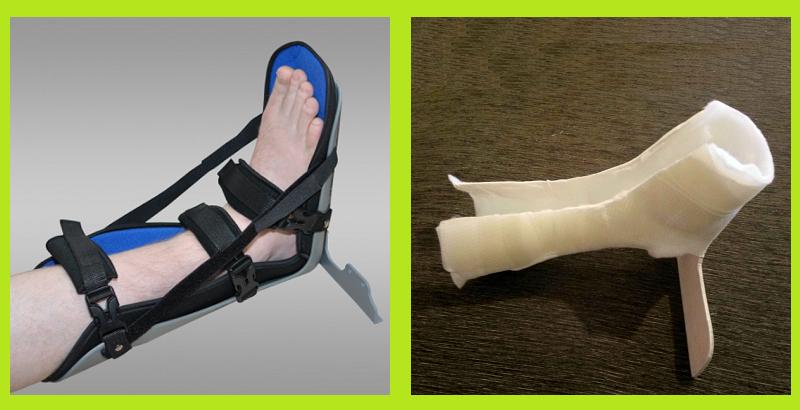 Деротационный сапожок — фиксатор при переломе шейки бедра