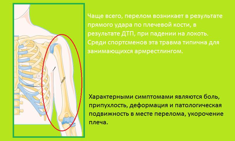 Распространенные причины слома тела плеча и его типичные симптомы