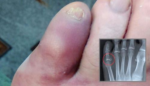 Закрытый перелом пальца стопы по МКБ 10 — S92.5