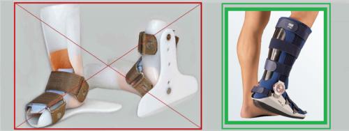Деротационный сапожок для фиксации сломов костей стопы и голеностопа не подходит