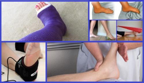 Основные виды лечения — иммобилизация и ЛФК, вспомогательные — физиотерапия и массаж