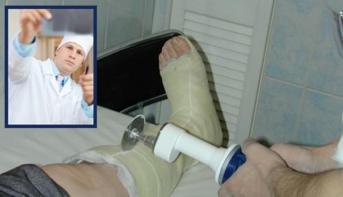 Решение о снятии пластикового гипса принимается на основании контрольного рентгена