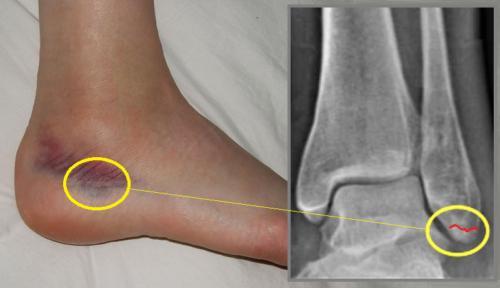 За банальным ушибом наружной щиколотки может «прятаться» трещина малоберцовой кости
