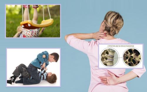 55 % пациентов с переломами в среднегрудном отделе — дети, 27 % — пожилые дамы