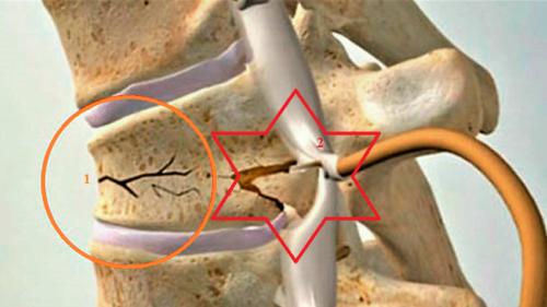 Клинообразная компрессия (1) и осколок тела сломанного позвонка, ущемляющего корешок спинного мозга (2)