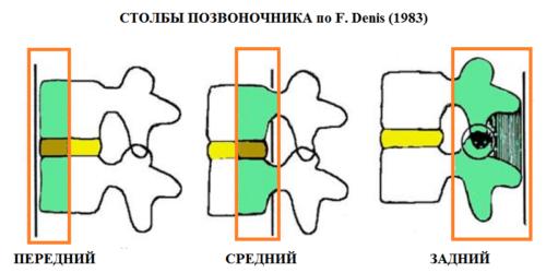 Трех-столбовая биомеханическая концепция переломов грудного отдела спины