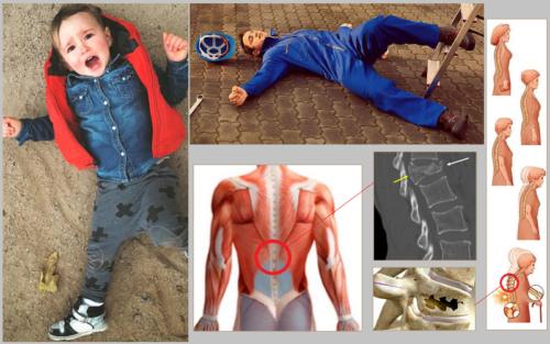 Самые частые причины компрессионных переломов в грудопоясничном отделе спины