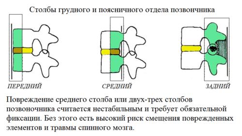 На выбор способа фиксации перелома позвоночного столба влияет его стабильность