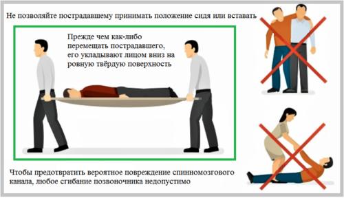 Главные правила первой помощи при подозрении на компрессионное повреждение Th12