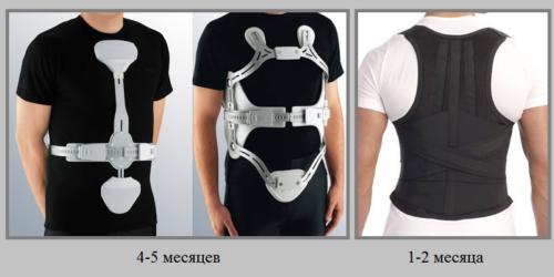 Ортопедические изделия при компрессионном переломе Th12 носятся в течение полугода