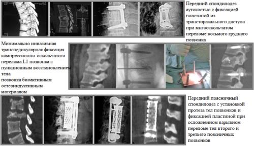 Примеры операций при компрессионной травме грудопоясничного отдела позвоночника