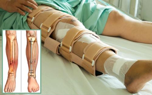 Реабилитация длится 3 месяца, а в случаях многооскольчатых сломов — до полугода