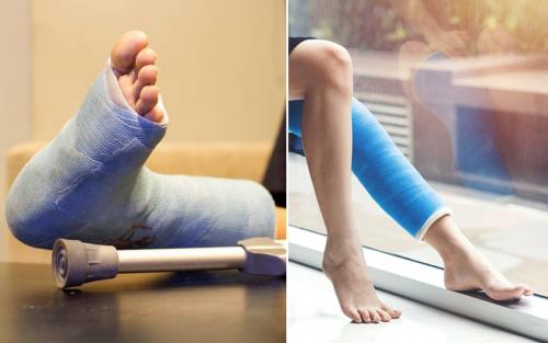 Как долго заживает перелом ноги, зависит от многих причин, в том числе и от его локализации