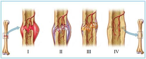 Формирование фиброзно-хрящевой (II) и костной (III) мозоли, фаза ремоделирования (IV)