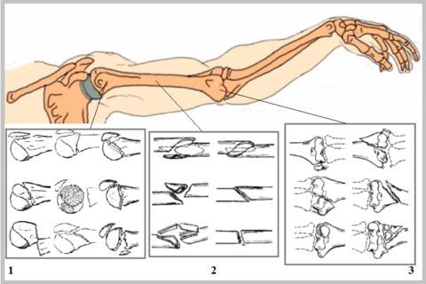 Тип и локализация повреждения влияет на то, сколько заживает перелом плечевой кости