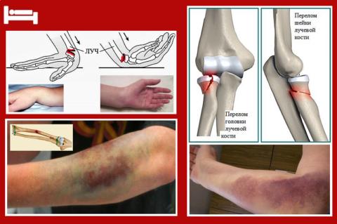 Характерные гематомы, деформации и отеки при переломе лучевой кости
