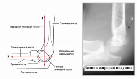 Косвенный признак оккультного дистального перелома плечевой кости (3)