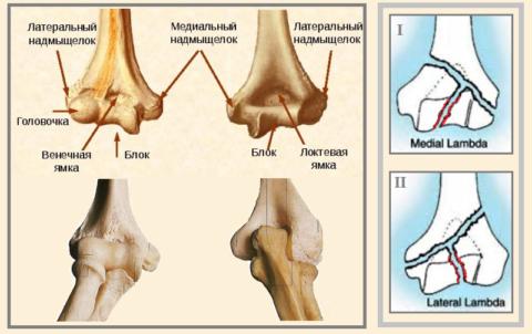 Надмыщелки и блок плечевой кости, некоторые варианты линии их изломов