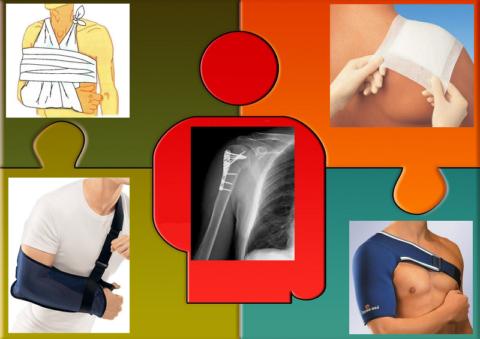 Некоторые видов повязок, применяющихся при переломах плечевой кости и сустава
