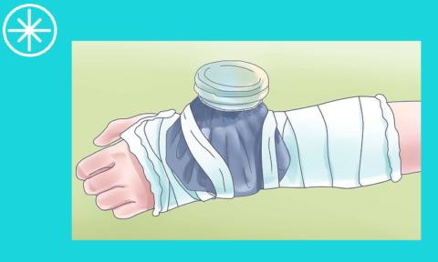 После того как гипс будет наложен можно продолжать прикладывать холод 1 раз в 2 часа