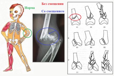 Сломы дистального отдела плеча (А: надмыщелковой области, В: мыщелков, С: А+В)