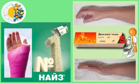 В иммобилизационном периоде — НПВП-таблетки, а после снятия гипса — гель с НПВП
