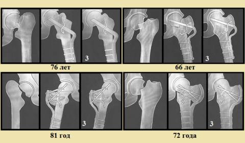 Возраст пациентов и результат годичной остеотомии наружной пластиной (3)
