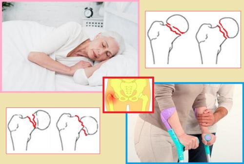 Людей старше 80 лет получить такую травму можно даже во время резкого поворота во сне