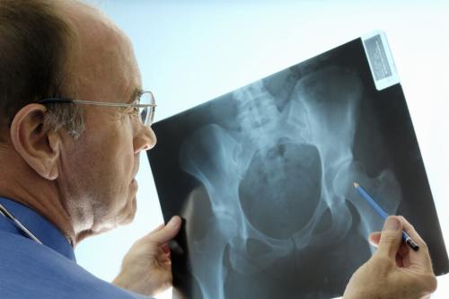 Без рентгеновского снимка диагноз Перелом шейки бедра не поставят