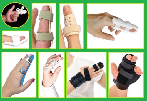 Альтернатива гипсу при переломе пальца руки