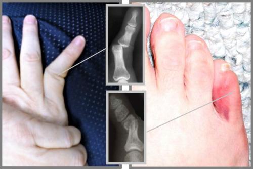 Выяснить, какое повреждение мизинца получено: вывих, перелом или только ушиб — возможно только с помощью рентгена