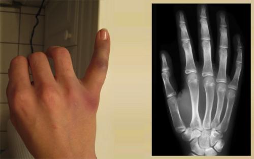 Что конкретно произошло: слом, вывих или ушиб — врач увидит только на рентгеновских снимках