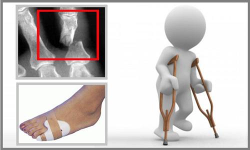 В некоторых случаях перелом 5-го пальца может ограничить передвижения на двух ногах сроком до 2-х недель