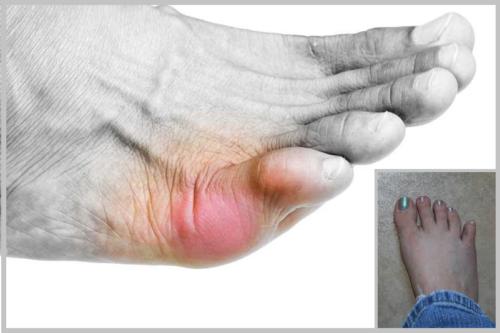 Ушиб, вывих или перелом 5-го пальца на ноге — это всегда крайне болезненно