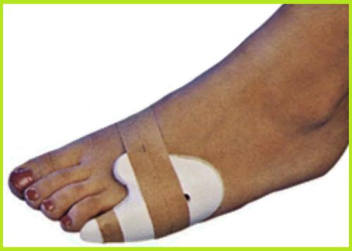 Тутор-накладка при вывихах, трещинах и сломах фаланг 5-го пальца ноги
