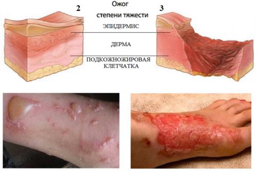 При II ст. ожога дерма повреждается частично, а подкожная клетчатка остается невредимой