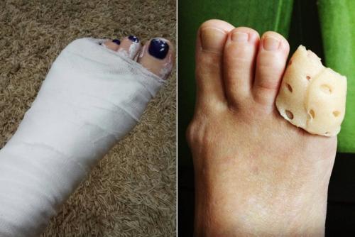 Варианты иммобилизации одного и того же перелома 5 пальца ноги — цель одна, но разница формы огромна